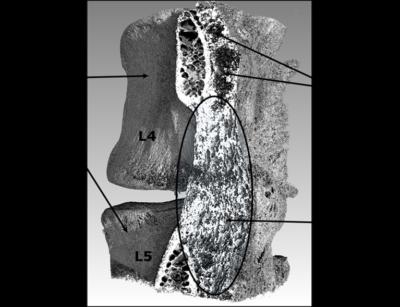 Spinal fusion using Genis' proprietary BoneReg osteoinductive material
